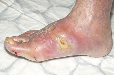 Figure 5. Foot five days later. Photographs reproduced courtesy of Salford Royal NHS Foundation Trust.