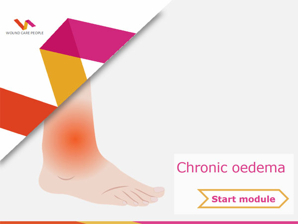 Chronic oedema e-learning module